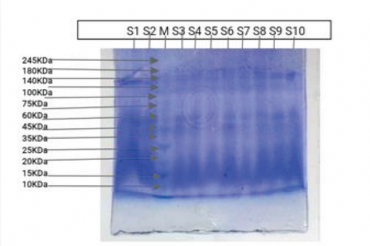 The electrophoretic banding pattern of Rice (Oryza sativa) accessions generated by SDS-PAGE