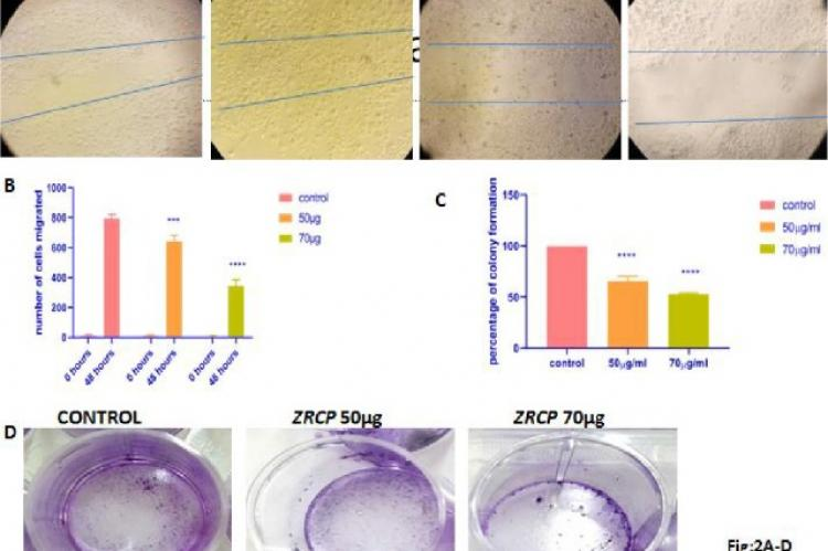 ZRCP inhibits cancer cell proliferation in vitro A) Wound healing assay (MCF-7 cells), B) Graph representing number of cells migrating