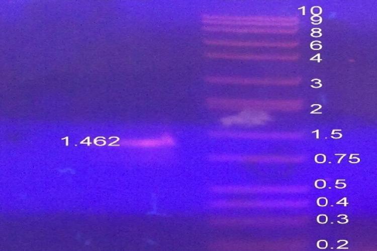 PCR product of 1467 bp of calB gene was observed on 1% Agarose gel