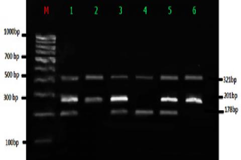 T-ARMS PCR Analysis of FTO gene. (M) - 100 bp Molecular marker; Lane1, 3, 6 (AT-321 bp, 210 bp, 178bp); Lane 2,5(TT-321bp, 178 bp); Lane 4 (AA-321 bp, 201bp)