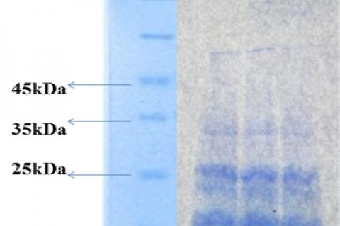 Electrophoretic profile of pumpkin seed protein