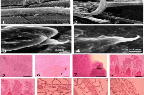 Scanning Electron Micrograph