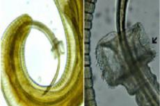 Males of Trichuris sp. recovered from gut of wild rat, Rattus rattus